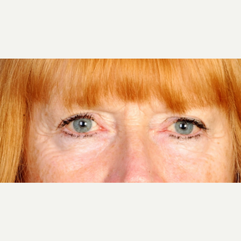 62 year old woman treated with upper eyelid blepharoplasty before 3839230