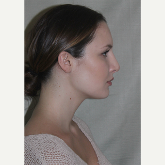 25-34 year old woman treated with Septoplasty 1543976