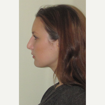 25-34 year old woman treated with Septoplasty before 1543976