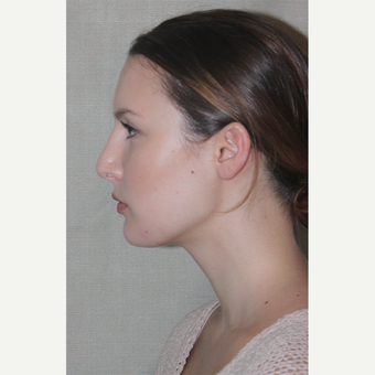 25-34 year old woman treated with Septoplasty after 1543976