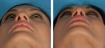 Revision Rhinoplasty before 1208284