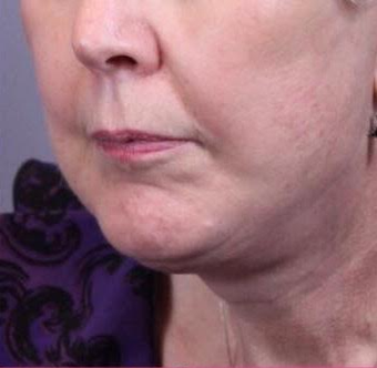 75 and up year old woman treated with Facelift after 3758424