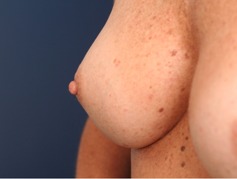 25-34 year old woman treated with Nipple Surgery after 3705893