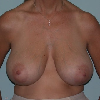 35-44 year old woman treated with Breast Reduction before 2624475