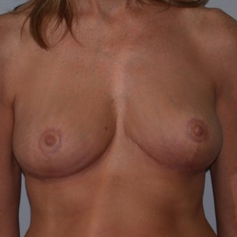 35-44 year old woman treated with Breast Reduction after 2624475