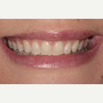 25-34 year old woman treated with Porcelain Veneers before 3281030