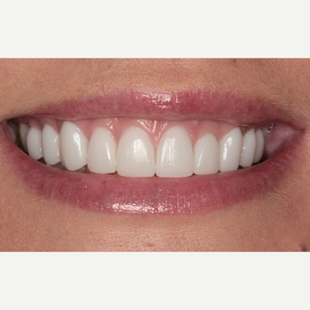25-34 year old woman treated with Porcelain Veneers after 3281030