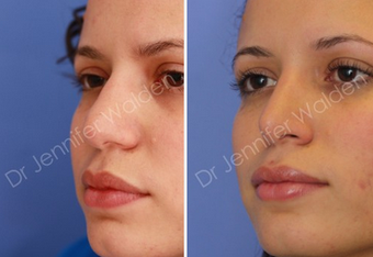 Septorhinoplasty before 1112647
