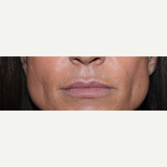 35-44 year old woman treated with Volbella before 3663932