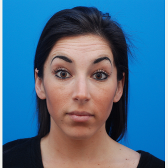 25-34 year old woman treated with Botox before 3287633