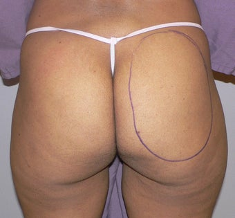 39 year old woman has Butt Augmentation