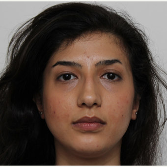 25-34 year old woman treated with Rhinoplasty before 3405683