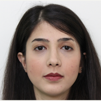 25-34 year old woman treated with Rhinoplasty after 3405683