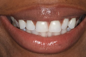 Durathin Minimal Prep Veneers before 345028