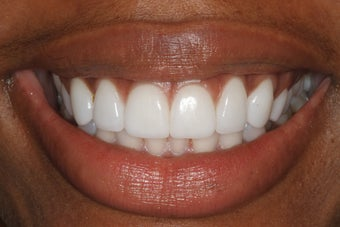 Durathin Minimal Prep Veneers after 345028