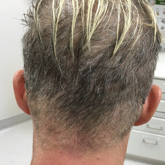 40 year old man treated with FUE Hair Transplant after 3615202