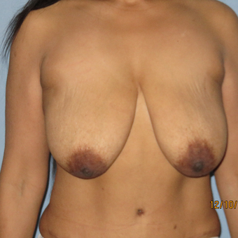 35-44 year old woman treated with Breast Lift with Implants before 3392308
