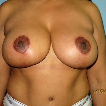 35-44 year old woman treated with Breast Lift with Implants after 3392308