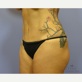 45-54 year old woman treated with Tummy Tuck Revision after 3421818