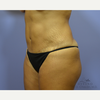 45-54 year old woman treated with Tummy Tuck Revision before 3421818