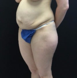 35-44 year old woman treated with Tummy Tuck before 3219223