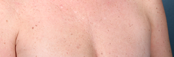 Fraxel Laser on Chest after 1064728
