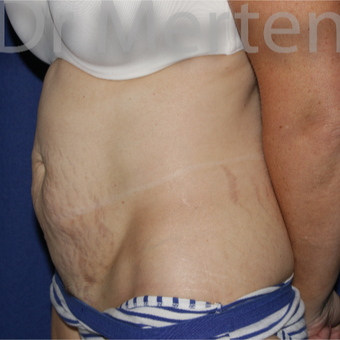 35-44 year old woman treated with Tummy Tuck before 3550261