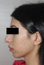 25-34 year old woman treated with Rhinoplasty before 3081308
