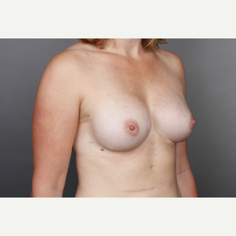 25-34 year old woman treated with Breast Implants after 2984867