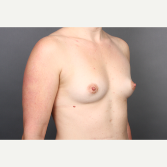 25-34 year old woman treated with Breast Implants before 2984867
