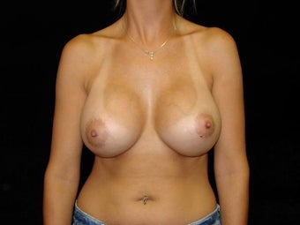 Breast Augmentation-Silicone after 203577