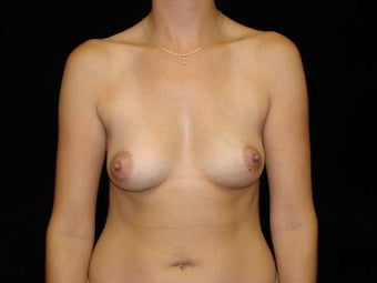 Breast Augmentation-Silicone before 203577