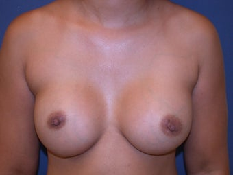 breast augmentation after 407286