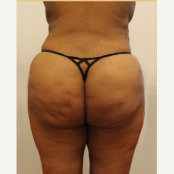 Brazilian Butt Lift after 1862876