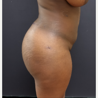25-34 year old woman treated with Butt Lift after 3363878