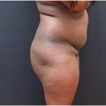 25-34 year old woman treated with Butt Lift before 3363878