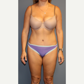 35-44 year old woman treated with Tummy Tuck after 3512826