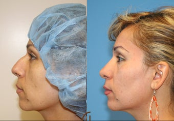 Nose job or Rhinoplasty after 252421