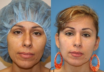 Nose job or Rhinoplasty before 252421