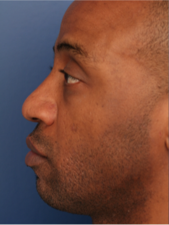 25-34 year old man treated with African American Rhinoplasty before 2765427