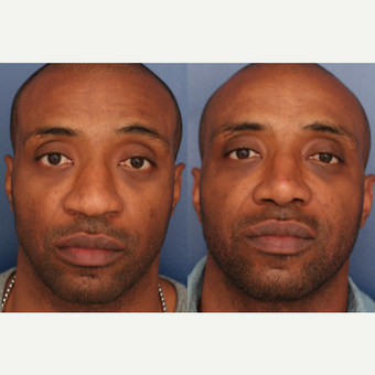 25-34 year old man treated with African American Rhinoplasty 2765427