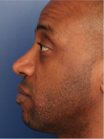 25-34 year old man treated with African American Rhinoplasty after 2765427