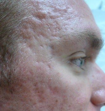 Acne Scars Treatment before 1520757