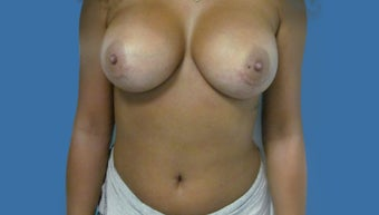Breast Augmentation/Implants after 1144169