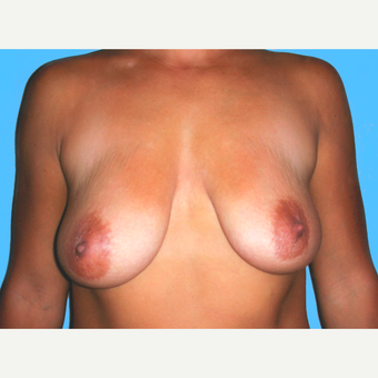 35-44 year old woman treated with Breast Lift with Implants before 3748592
