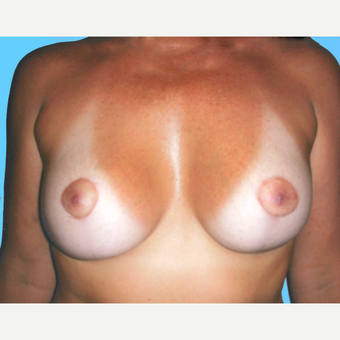 35-44 year old woman treated with Breast Lift with Implants after 3748592