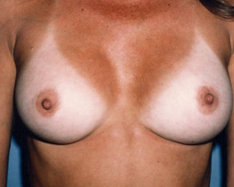 Breast Augmentation Achieves Fullness after 876548