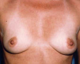 Breast Augmentation Achieves Fullness before 876548