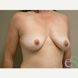 Breast Lift with Implants before 3373445
