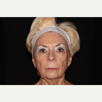 65-74 year old woman treated with Sculptra before 3748701